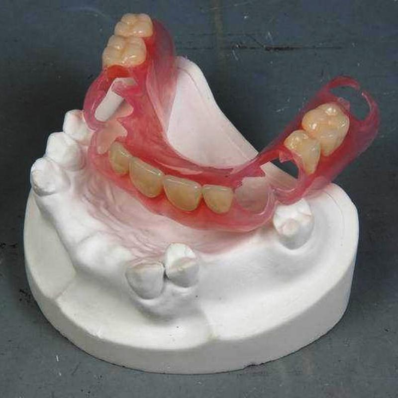 Valplast Teilprothese