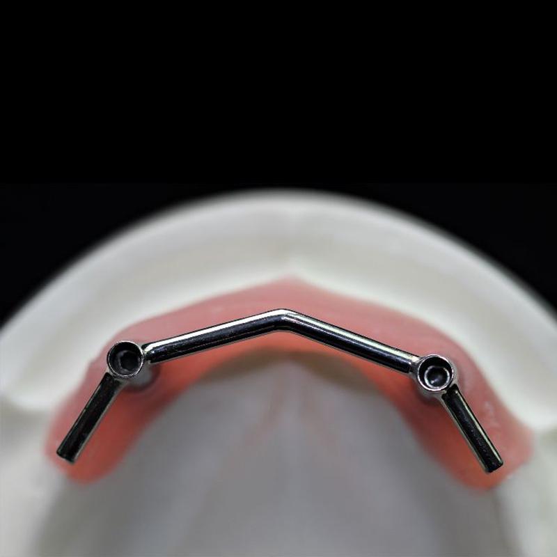 Implantatstange