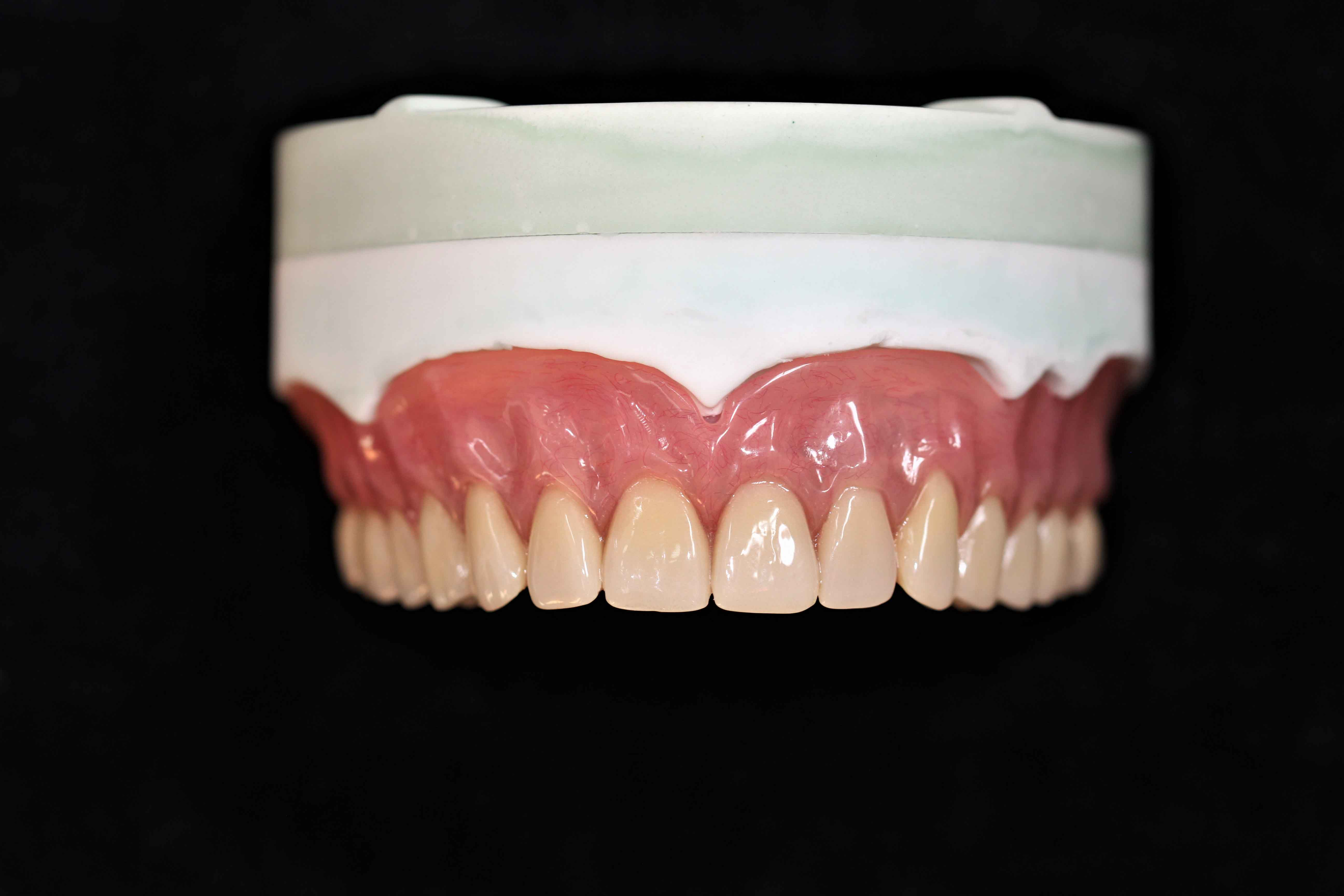 Determination of vertical distance of full denture