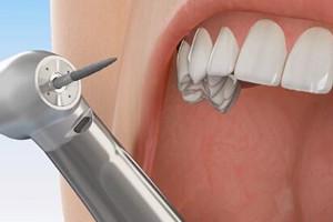 dental diamond burs