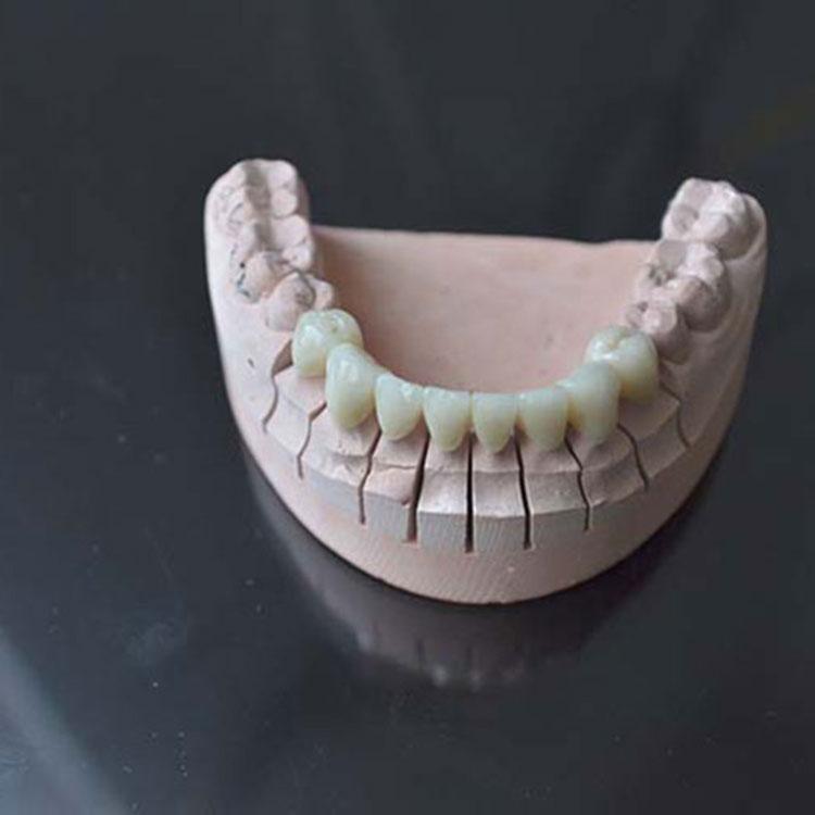 کون سے دانتوں کو آسانی سے بغیر تبدیلیاں ختم کیے جاتے ہیں؟