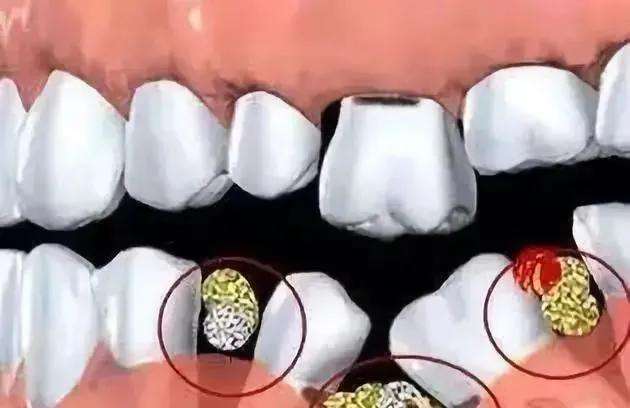 What should I do if my teeth are rotten to the roots?