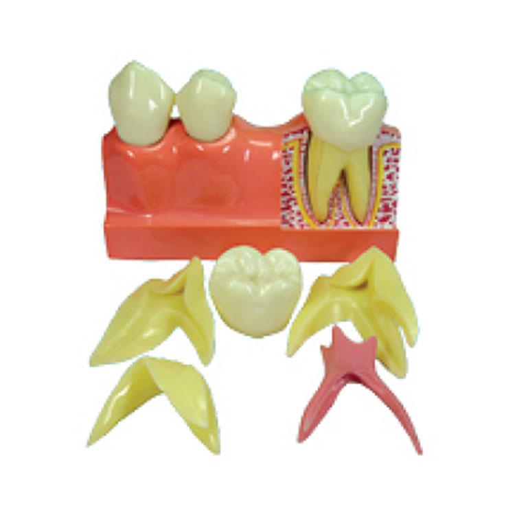4 kaping Model Pembuangan Gigi