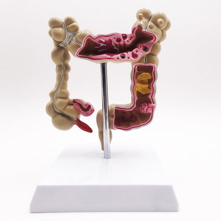 Penyakit Kedokteran Model Kolon