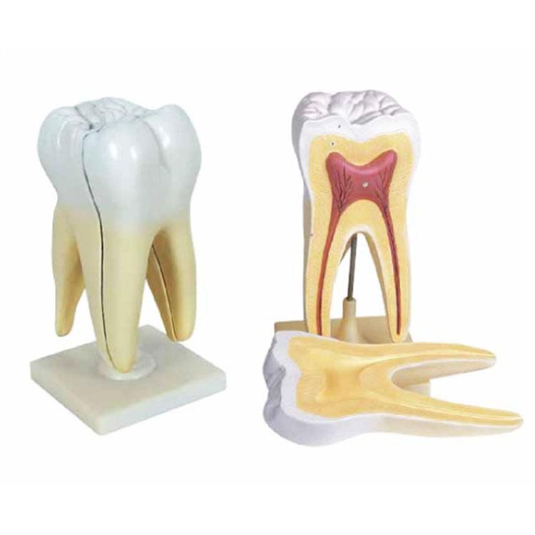Triple Root Molar Kanthi Model Caries